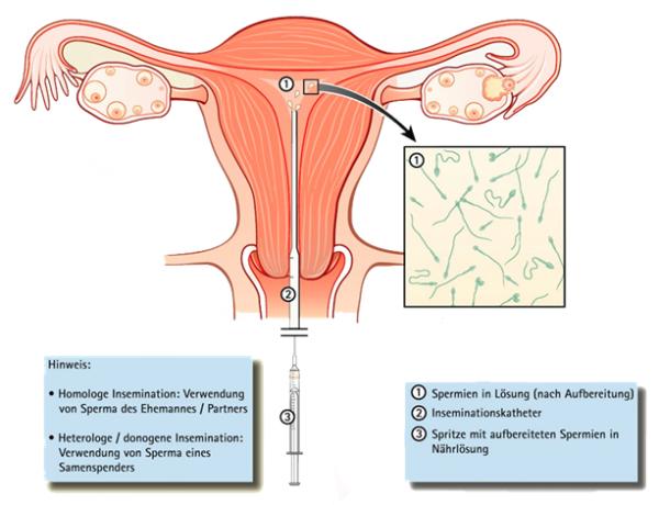 die spermienzahl mehreren die ejakulation